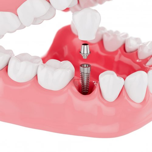 Close up Process Implants teeth health care on white background. Selective focus. 3D Render.
